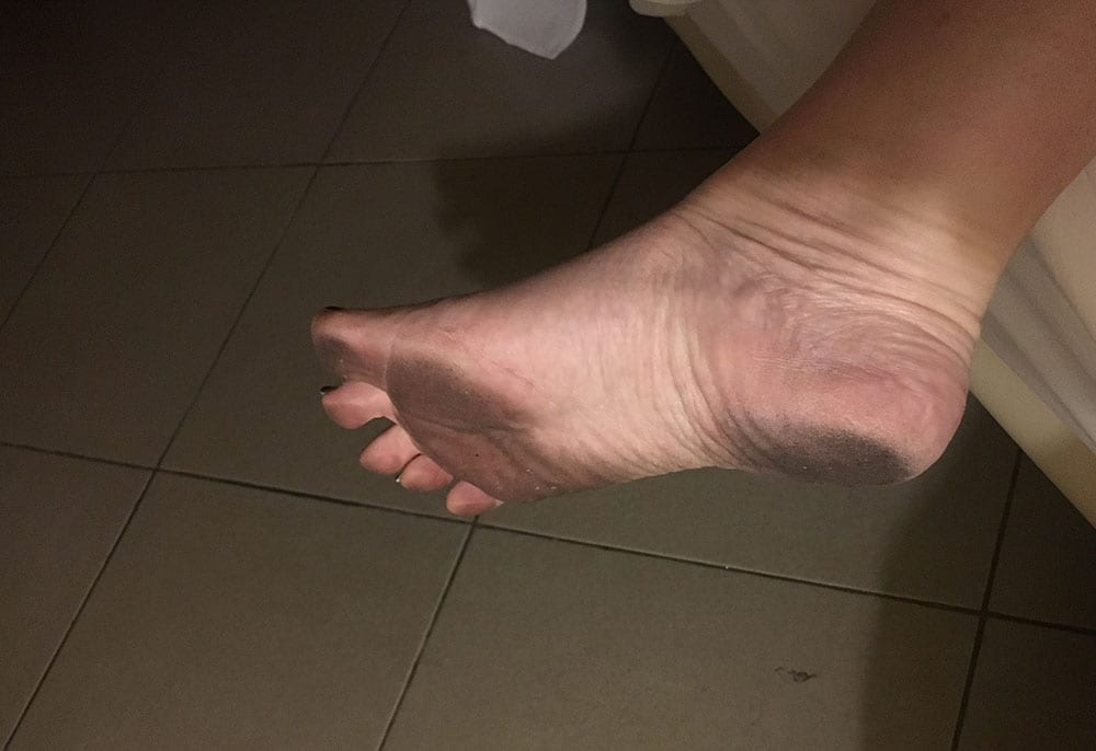 Black feet from floor