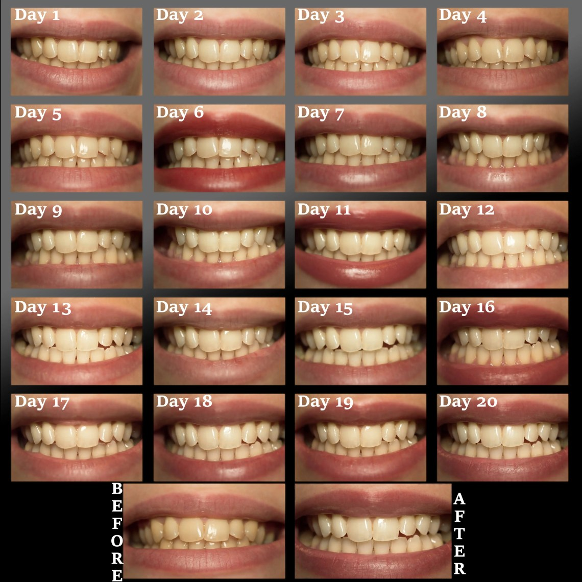 3D-crest-white-whitestrips-luxe-professional-effects-review (3)