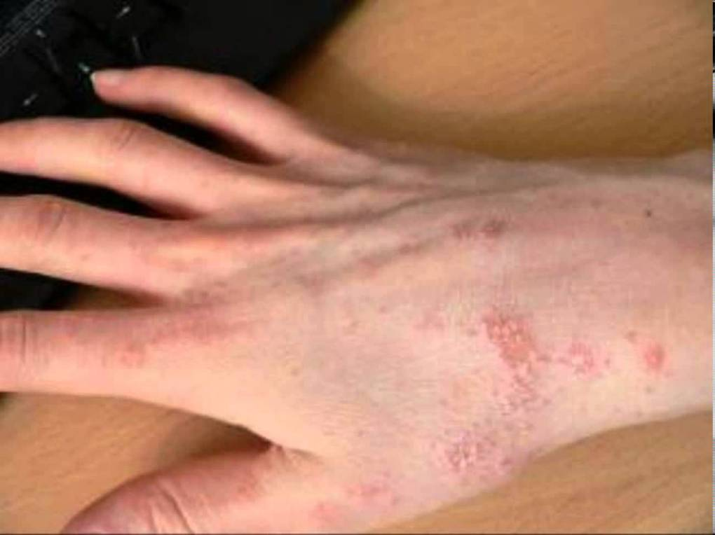 Home Remedies to Naturally Cure Scabies