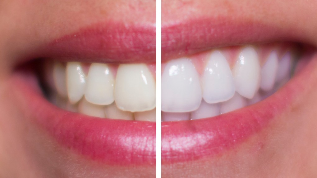 Ways to Whitening Teeth At Home
