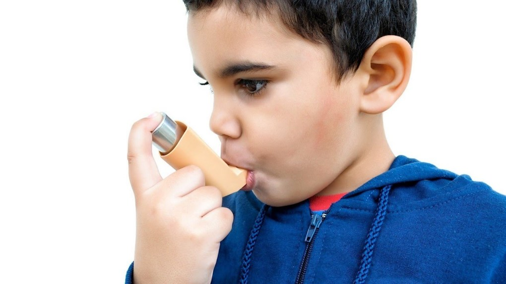 4 Stages Of Asthma