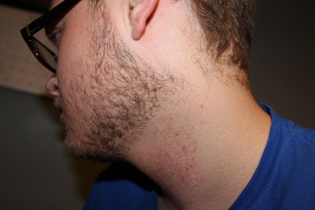 Best 7 Home Remedies For Beard Rash