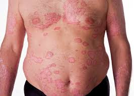 The Signs and Symptoms of Psoriasis