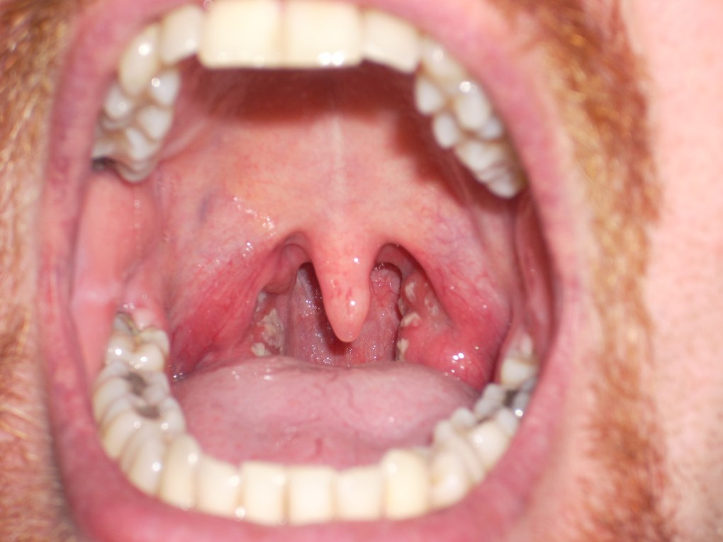 Symptoms Of Strep Throat
