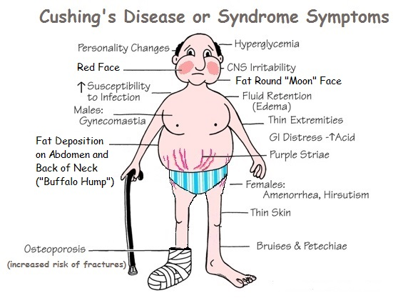 Cushing's Syndrome: Causes, Symptoms & Treatments