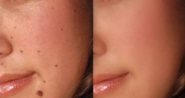 home-remedies-for-moles