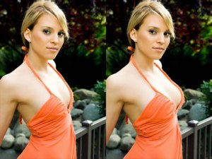 Risks Of Breast Augmentation Surgery