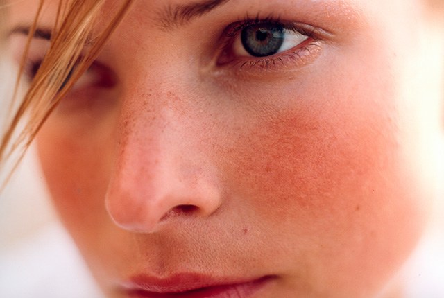 8 Natural Remedies For Rosacea