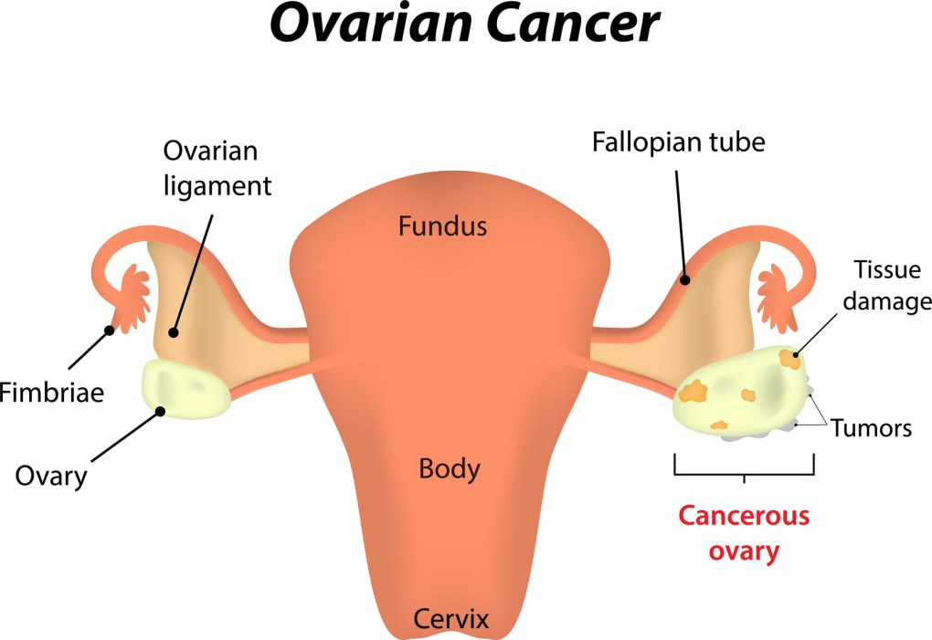 Ovarian Cancer Causes, Symptoms, and Treatments