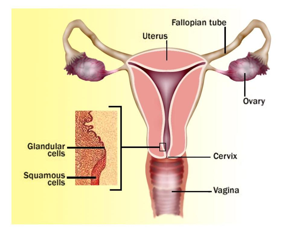 Different Stages Of Cervical Cancer