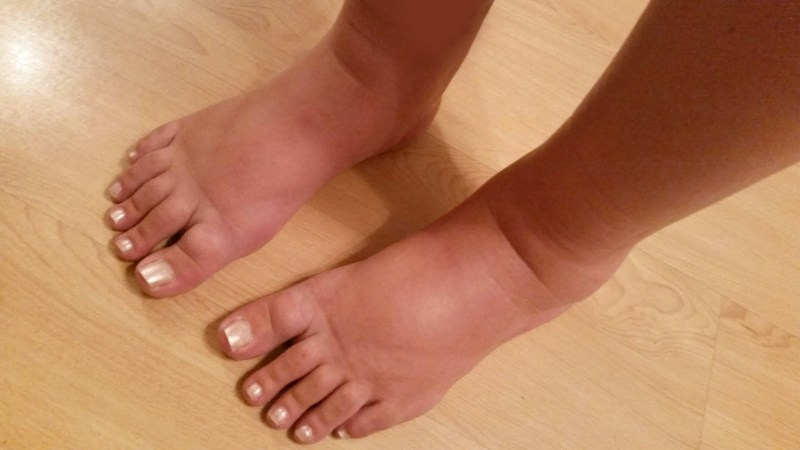 Natural Remedies For Swollen Feet And Ankle