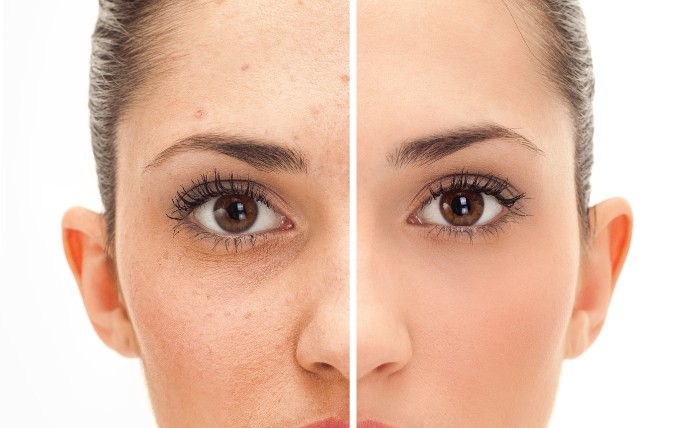 Ways To Cure Acne With Progesterone Cream