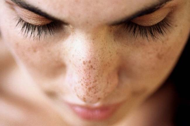 8 Top Home Remedies For Dark Spots
