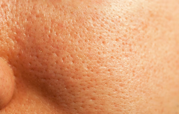 how to cure open pores