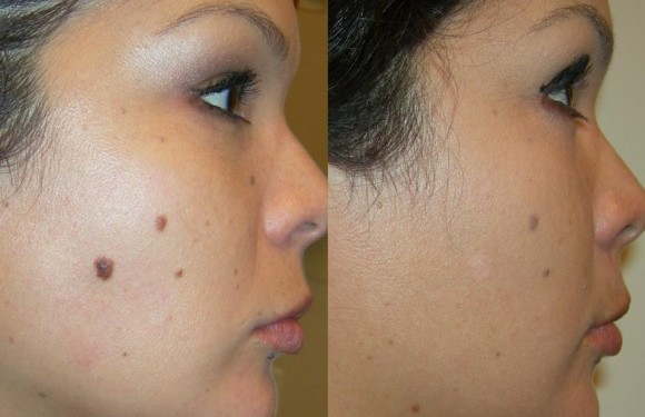 6 Home Remedies For Removing Moles