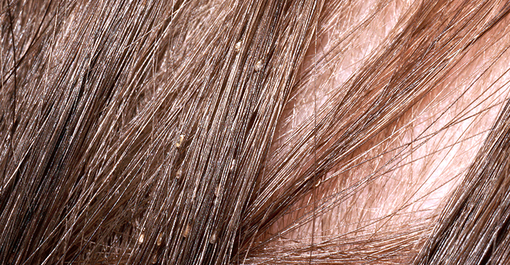 7 Effective Home Remedies For Lice