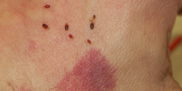 How to Naturally Treat Bed Bug Bites