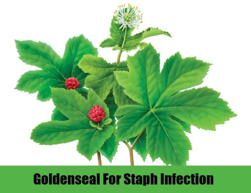Goldenseal for Staph Infection