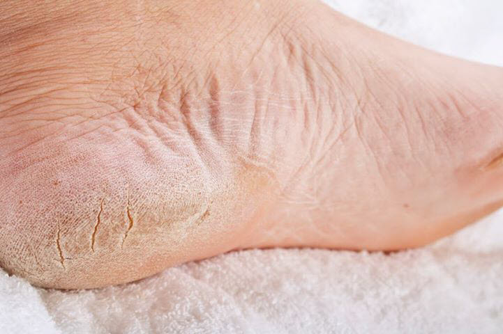 7 Best Effective Home Remedies for Cracked Heels