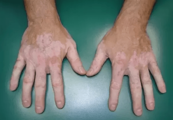 8 Best Effective Natural Home Remedies for White Patches (vitiligo)