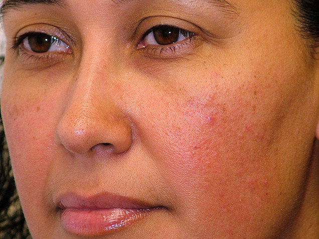8 Effective Home Remedies for Redness On Face