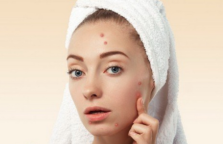 Top 9 Effective Home Remedies for Pimples