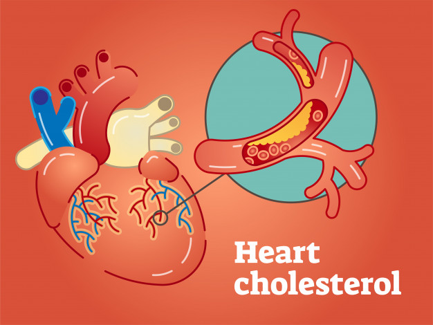 8 Best Cholesterol Lowering Diets For High Cholesterol Patients