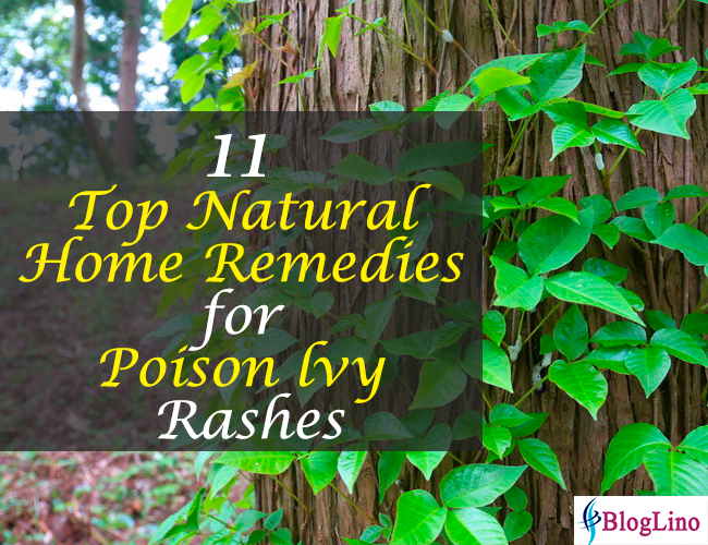 11 Top Natural Home Remedies for Poison lvy Rashes
