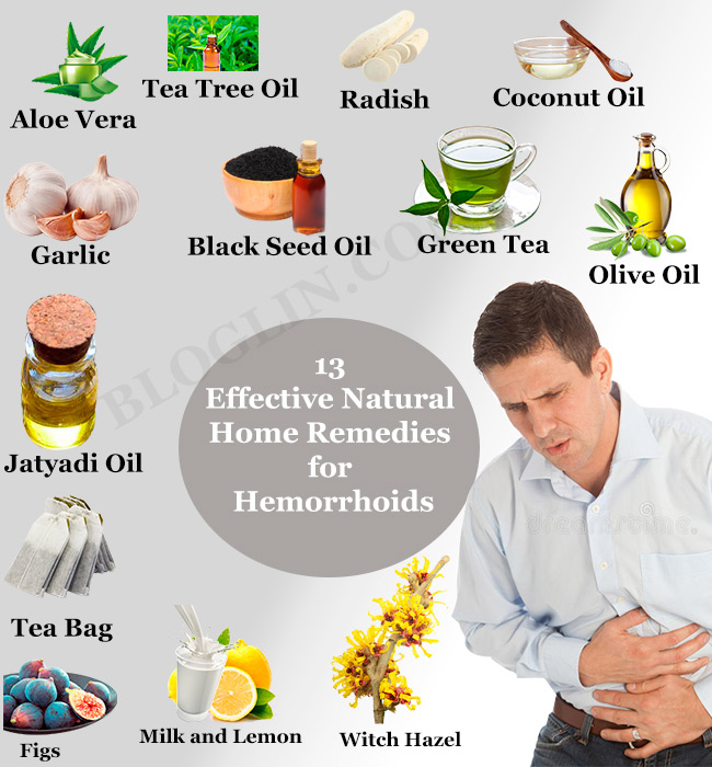 13 Top Natural Home Remedies for Piles or Hemorrhoids