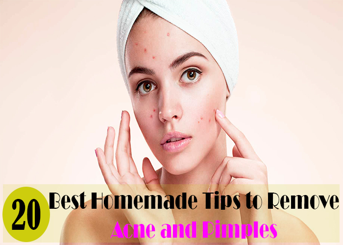 Best Homemade-Tips-to-Remove-pimple-and-acne
