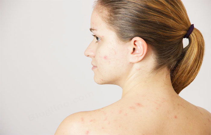 Peanuts for Skin Related Problems