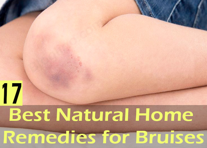 bruises, bruises home remedy, bruises treatment, how to heal bruises overnight, how to treat bruises, natural home remedies for bruises