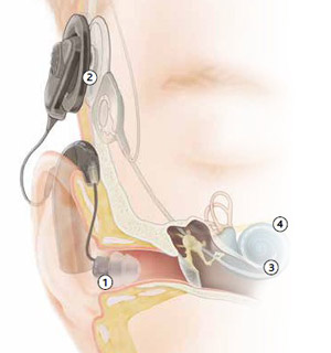 cochlearimplant-traditional-aid