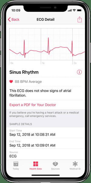 App Salute: Visualizzazione dell'Elettrocardiogramma e Rilevazione di Fibrillazione Atriale