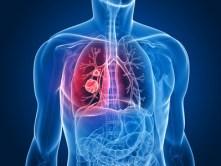 transparenter Körper mit Lungentumor