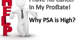 PSA False Results