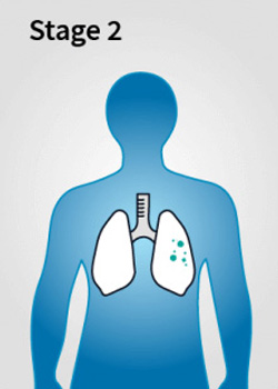 Mesothelioma Stage 2 - Stages of Mesothelioma Disease
