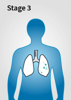 Mesothelioma Stage 3 - Stages of Mesothelioma Disease