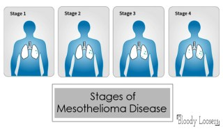 Stages of Mesothelioma Disease