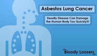 Asbestos Lung Cancer - Deadly Disease Can Damage the Human Body Too Quickly