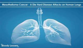 Mesothelioma Cancer - A Die Hard Disease Attacks on Human Lungs