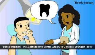 Dental Implants - The Most Effective Dental Surgery to Get Back Strongest Teeth