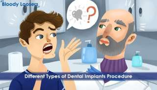 Different Types of Dental Implants Procedure