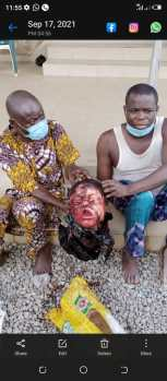 Money ritual: Suspected ritualists severe girl head, sell hands for N20,000