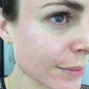 After Chemical Peel