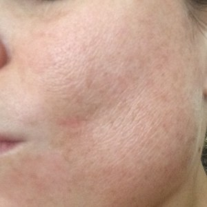Chemical Peel 15%