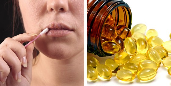 8 Simple Ways To Get Rid Of Cold Sores 22