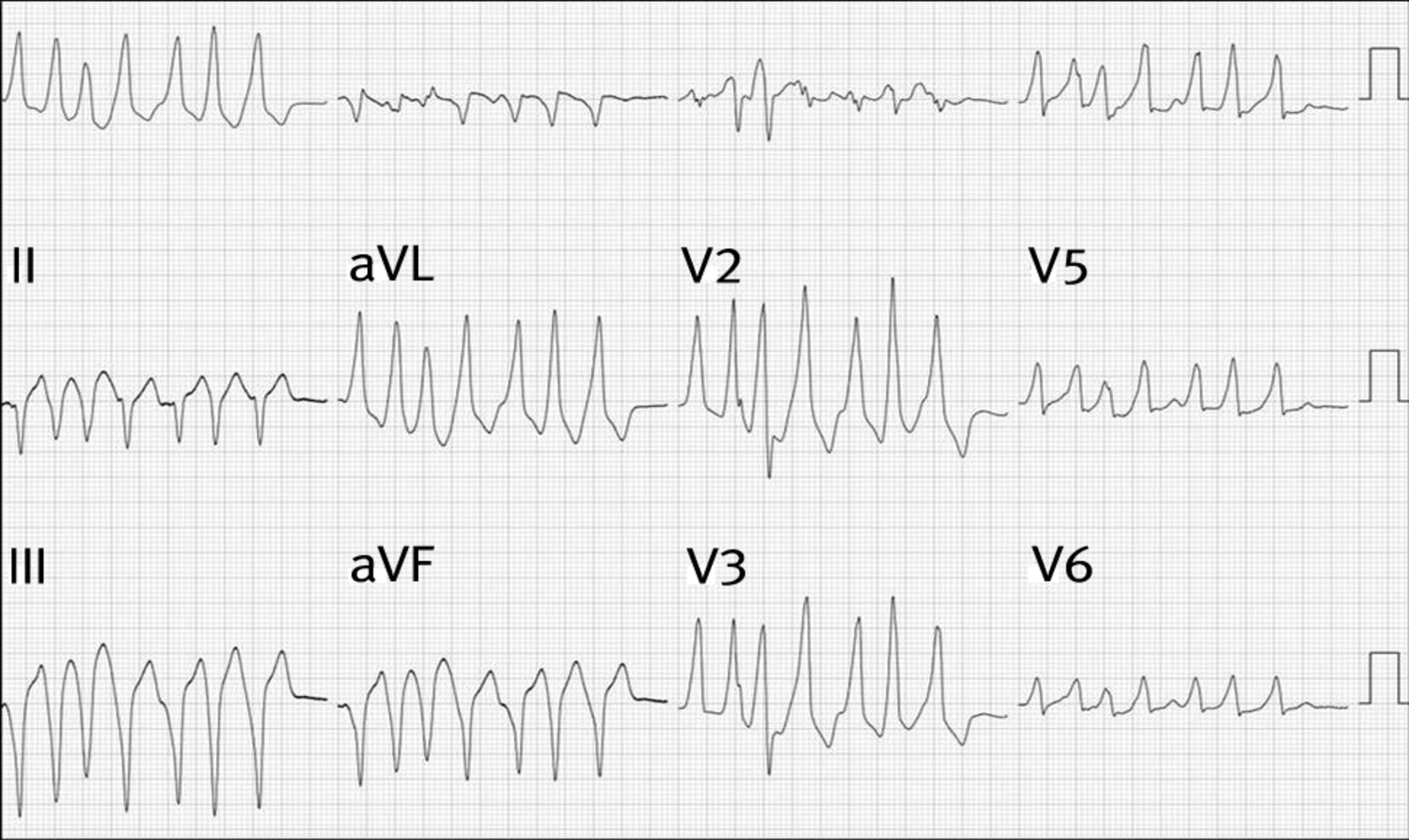 Diagnosis And Management Of Supraventricular Tachycardia