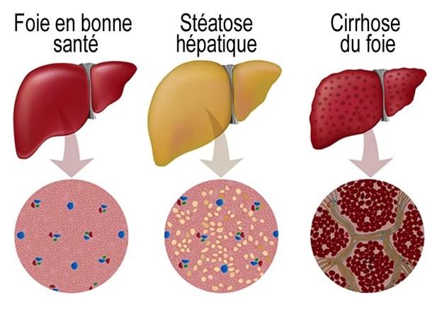La stéatose hépatique, c'est quoi ?