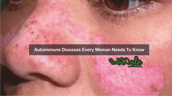 Autoimmune Diseases Every Woman Needs To Know 1